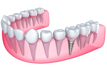 smilerite dental implants