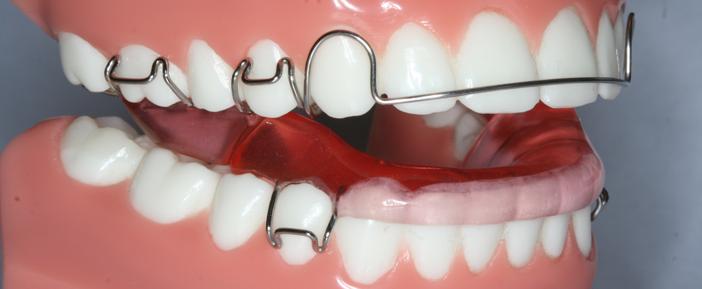 Dental Braces in Abu Dhabi