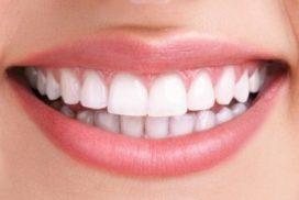cosmetic dentistry abu dhabi - teeth whitening abu dhabi